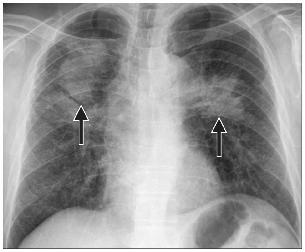 X Ray Whooping Cough