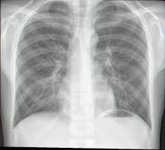 pertussis lung x ray